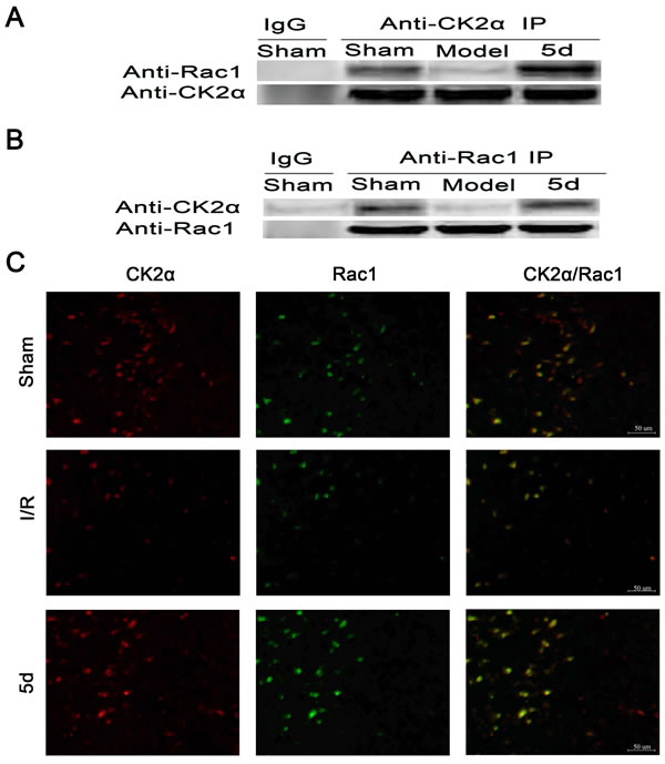 Effects of 5d on the relationship between CK2 and Rac1 protein levels.