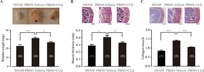 Chloroquine treatment significantly attenuates the bladder morphological changes of PBOO mice.