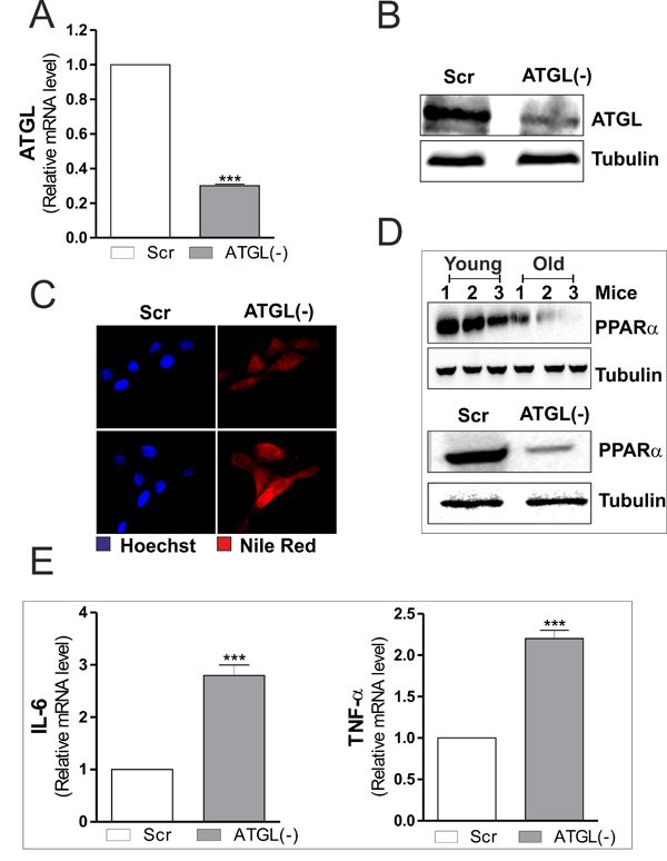 ATGL down-regulation is associated with increased pro-inflammatory markers in C2C12 myoblasts.