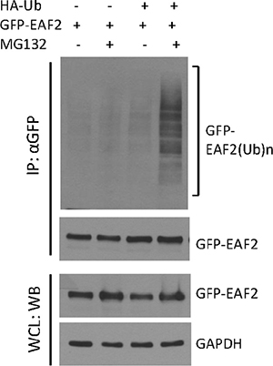 Polyubiquitination of GFP-EAF2 protein.