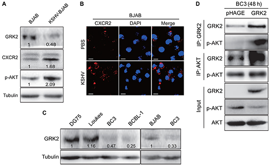 The GRK2/CXCR2/AKT pathway is changed in B lymphoma cells infected by KSHV.