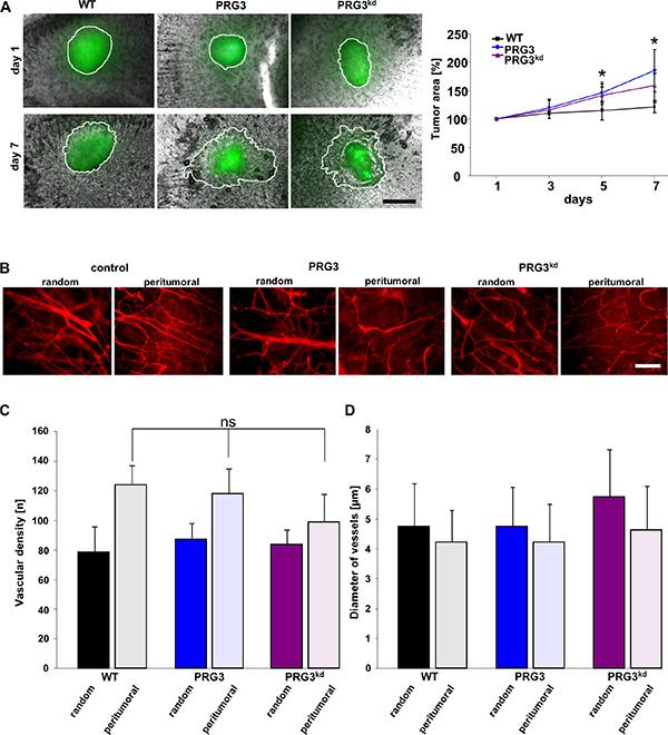 Imbalanced PRG3 levels drive glioma invasion but not tumor angiogenesis.