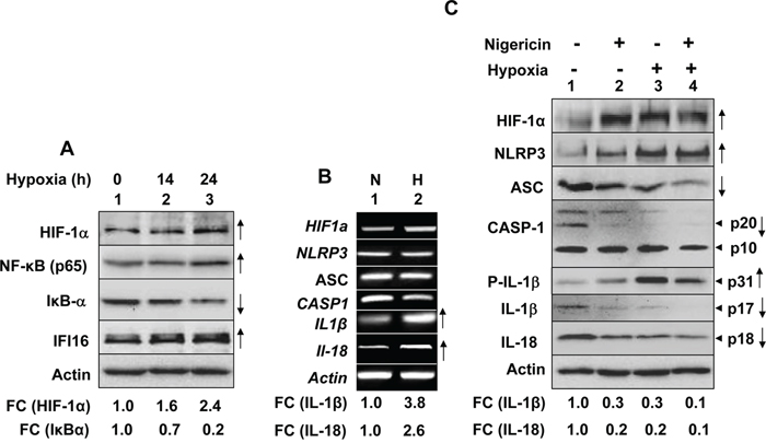 Hypoxia primed and potentiated NLRP3 inflammasome activation in human normal PrECs.