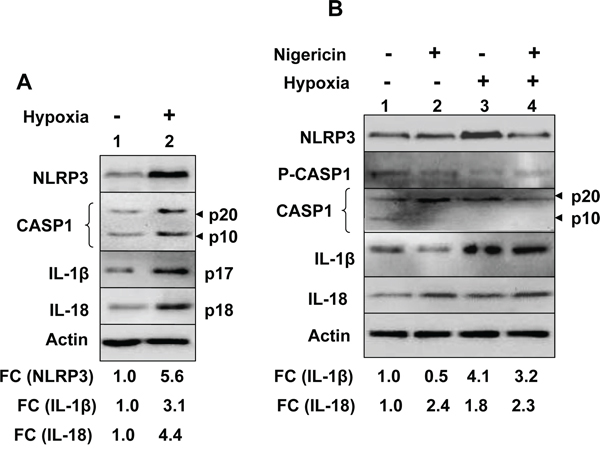 Hypoxia potentiated activation of the NLRP3 inflammasome activity in human benign prostate hyperplasia cell line BPH-1.