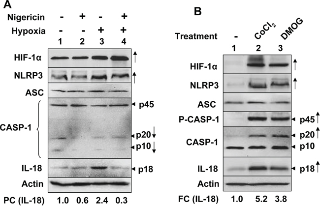 Hypoxia stimulated spontaneous and nigericin-induced NLRP3 inflammasome activity in PC-3 human prostate cancer cell line.
