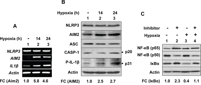 Hypoxia in human THP-1 monocytic cell line differentially regulated the expression of the NLRP3 and AIM2 receptors, and inflammasomes proteins through activation of the NF-κB activity.