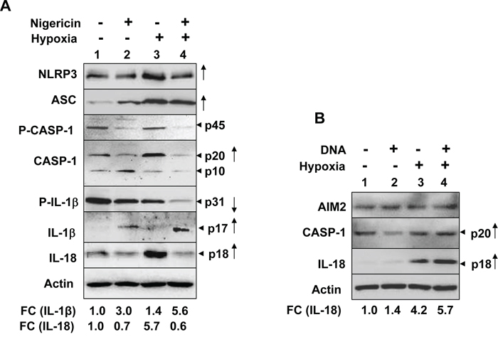 Hypoxia in PMA-differentiated THP-1 cells stimulated the spontaneous and ligand-induced activation of the NLRP3 and AIM2 inflammasome.