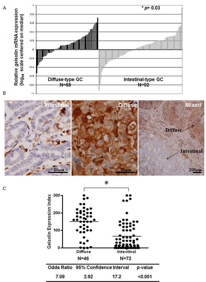Increased Gelsolin expression in diffuse-type gastric cancer.