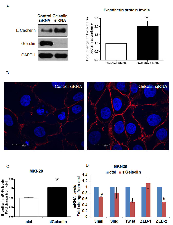 Loss of Gelsolin increases E-Cadherin expression in gastric cancer cells.