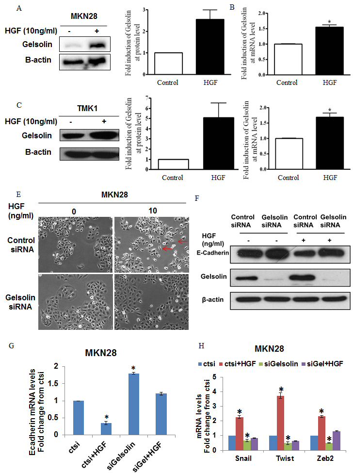 Gelsolin mediates HGF-induced E-cadherin downregulation and cell scattering of gastric cancer cells.
