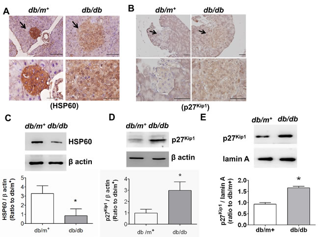 The expressions of HSP60 and p27Kip1 in pancreatic islets of db/db diabetic mice.