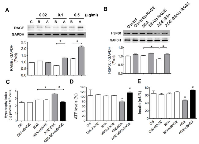 Involvement of AGEs-RAGE axis in the alterations of HSP60 protein expression, cell hypertrophy, ATP production, and insulin secretion in AGEs-treated β-cells.