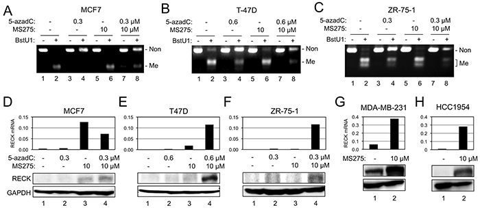 Effects of 5-azadC and MS275 on RIM and RECK expression.
