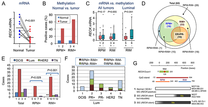 Statuses of RECK mRNA, RPM, and RIM in human breast tissues.