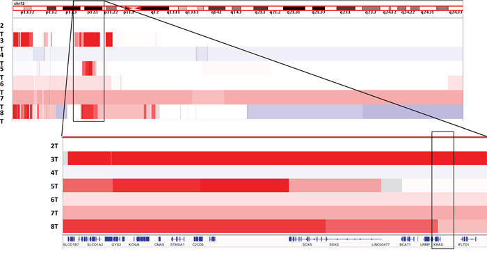 View of recurrent chromosome 12p copy number gains in our sample cohort viewed using Integrated Genome Viewer (IGV)[11].
