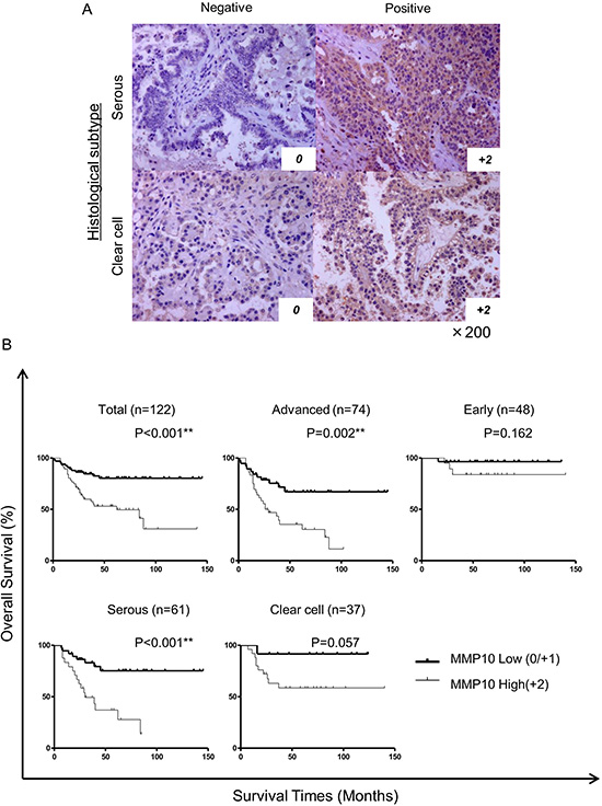 Immunohistochemical staining of clinical samples and statistical analysis.