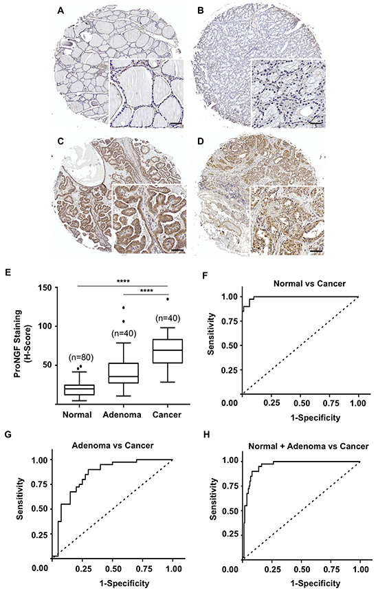 ProNGF expression in cohort 1 of thyroid cancers versus adenomas and normal tissues.