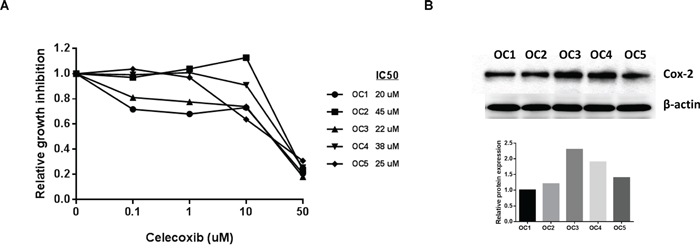 Celecoxib inhibited cell proliferation in primary cell cultures of human ovarian cancer.