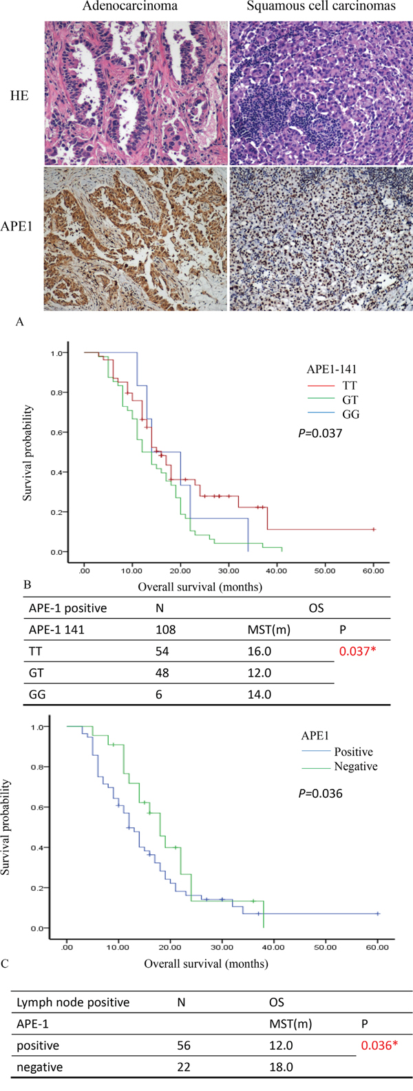 APE1 expression predicts survival prognosis of patients with NSCLC.