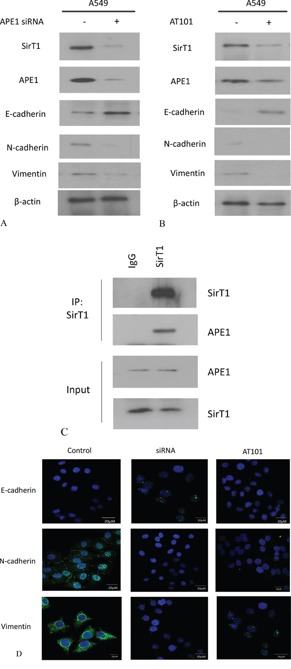 APE1 expression was inhibited by siRNA or AT101 to suppress EMT in NSCLC in vitro.