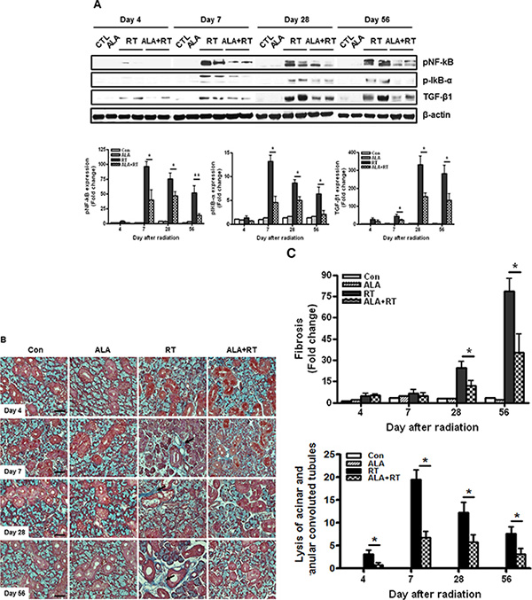 ALA inhibits radiation-induced inflammation and fibrotic changes in the salivary gland.