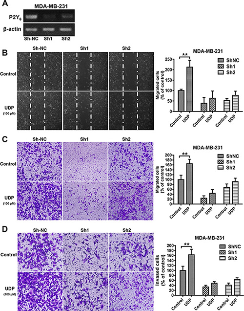 P2Y6 knock down reduces breast cancer cell metastasis.
