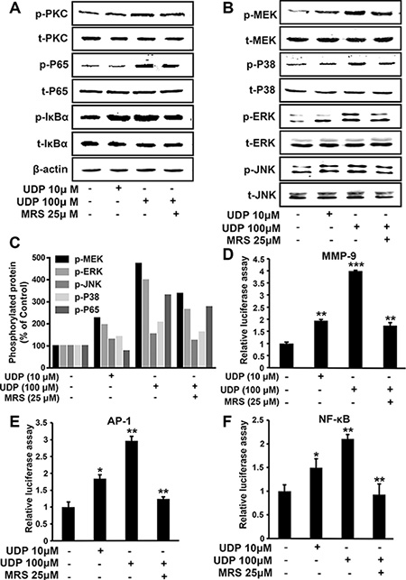 UDP/P2Y6 promotes breast cancer cell metastasis through NF-κB and MAPKs signaling.