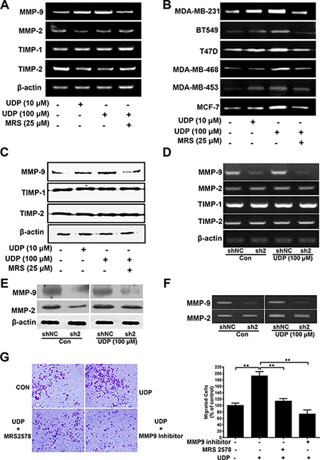 UDP/P2Y6 increases MMP-9 expression in breast cancer cells.