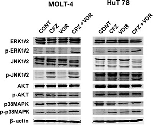 MAPK signaling pathways are mediated by combination treatment of carfilzomib and vorinostat.