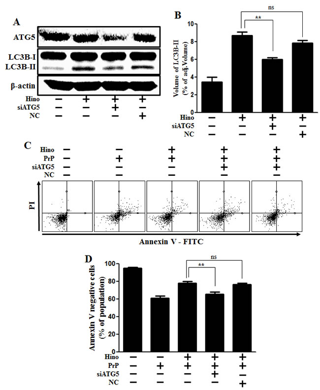 ATG5 knockdown decreases neuroblastoma cell viability.