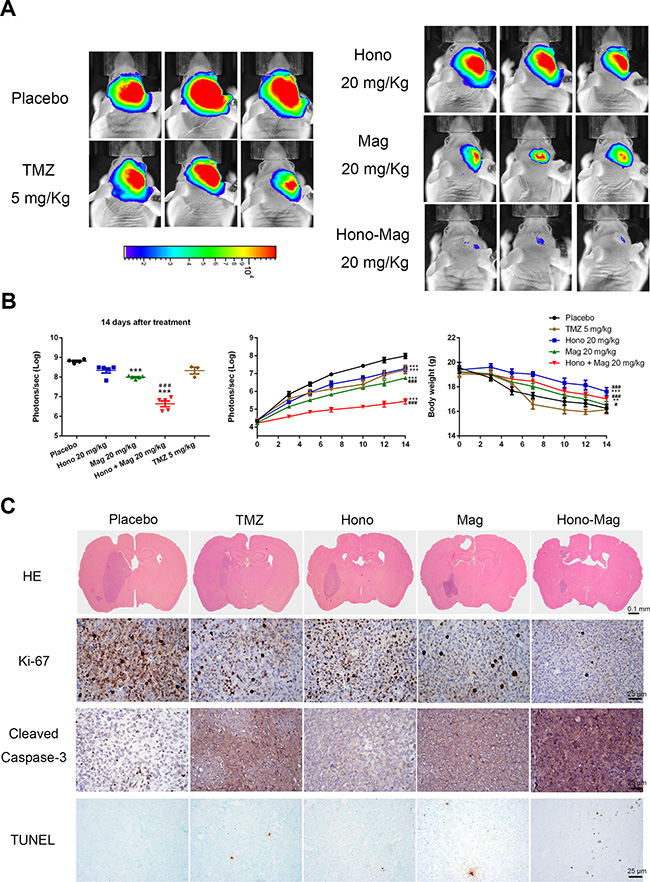 Hono-Mag treatment reduced tumor progression in orthotropic human GBM xenograft mouse models.
