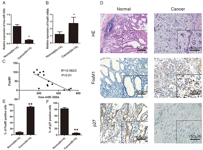 Association of miR-320a reduced expression and increased FoxM1 expression with the inhibition of P27KIP1 in human gastric cancer.