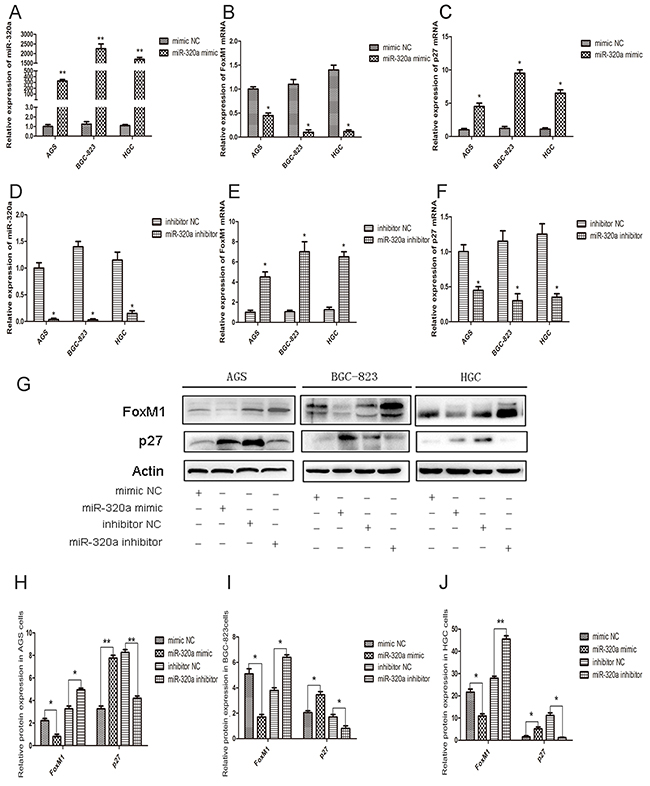 The effect of miR-320a on FoxM1 and P27KIP1 expression in human gastric cancer cells.