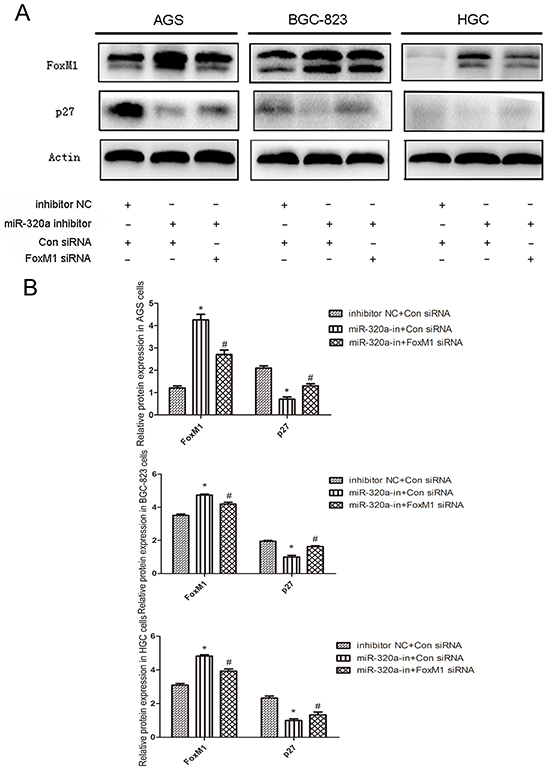 The recovery experiment of miR-320a's regulation of P27KIP1 expression through FoxM1in human gastric cancer cells.