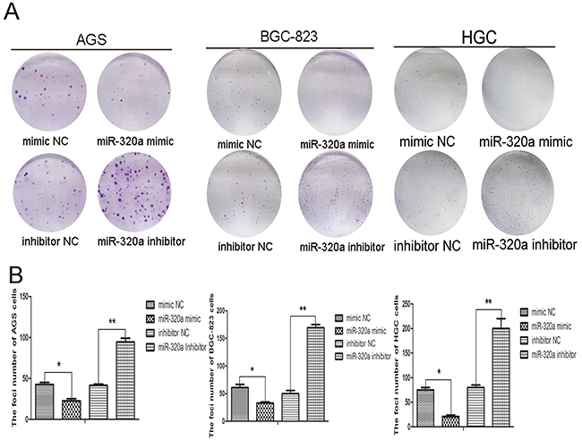miR-320a was involved in gastric cells proliferation.