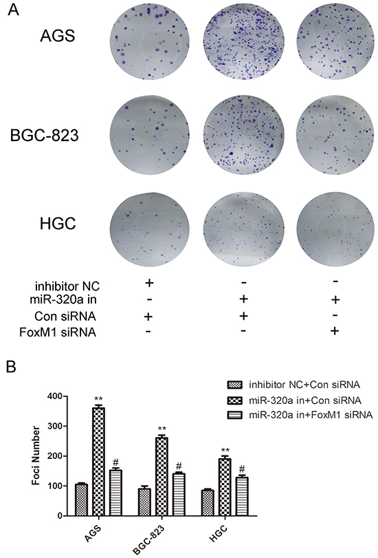 The recovery experiment for miR-320a of colon genetics.