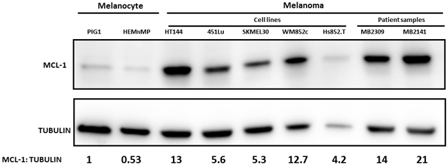 Higher MCL-1 protein expression in melanomas compared with Melanocytes.