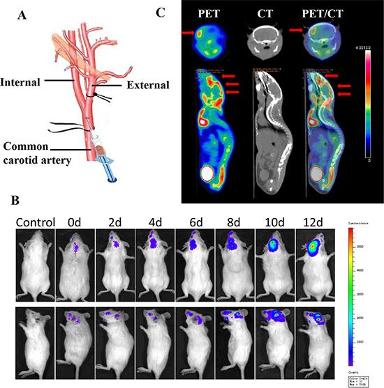 Establishment and confirmation of brain metastasis models.