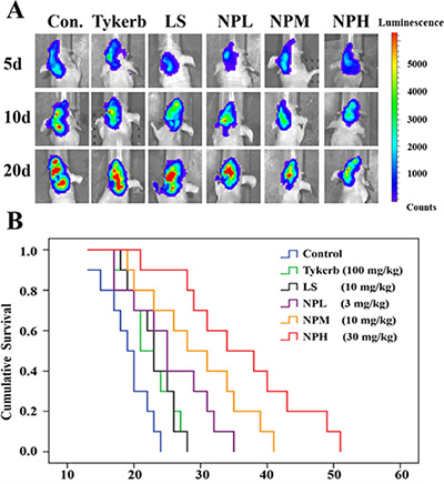 Anti-tumor and anti-metastasis effects of different treatments in 4T1 brain metastatic models.