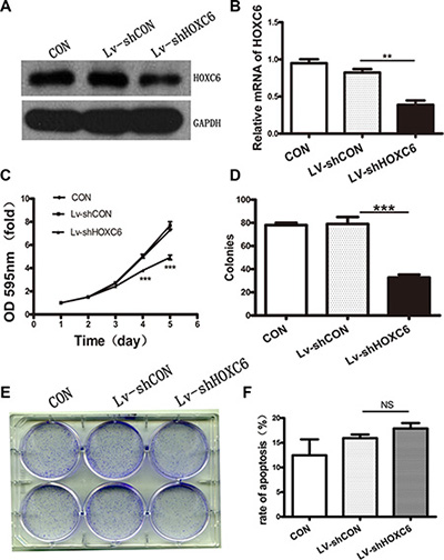 HOXC6 downregulation inhibited tumor cell proliferation in vitro.