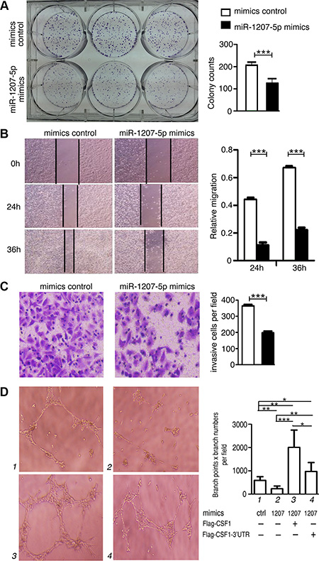 miR-1207-5p suppresses the tumorigenicity of A549 cells and inhibit tube formation of endothelial cells in vitro.