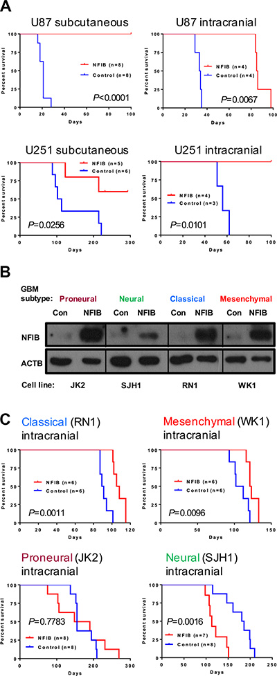 Ectopic expression of NFIB in human classical and mesenchymal GBM inhibits tumour growth.