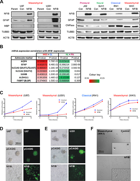 Ectopic expression of NFIB in human mesenchymal GBM induces differentiation, inhibits proliferation and inhibits self-renewal.