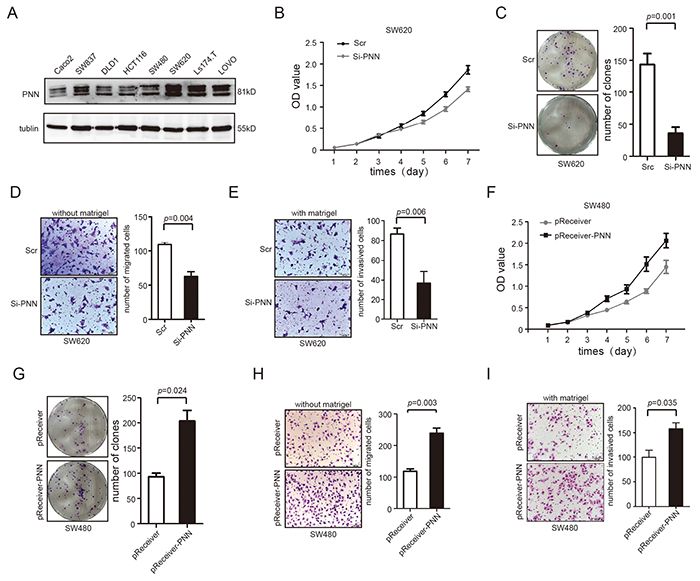 PNN level is related to proliferation, migration and invasion of CRC in vitro.