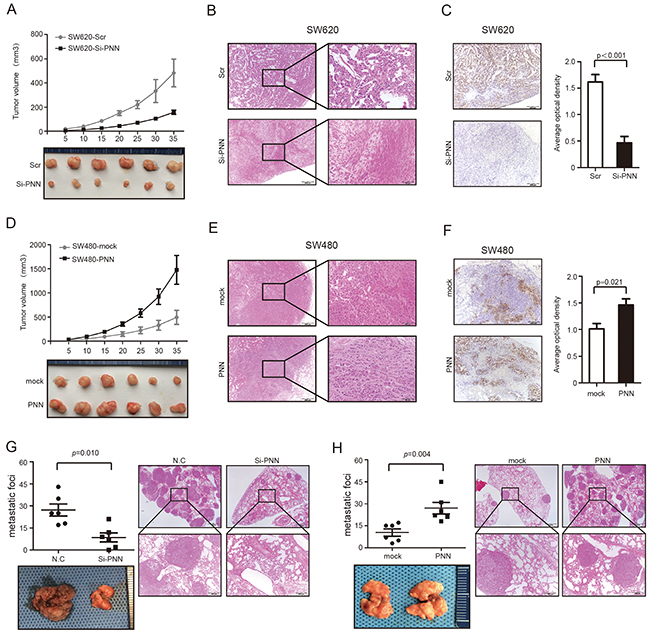PNN is related to tumor growth and metastasis of CRC in vivo.