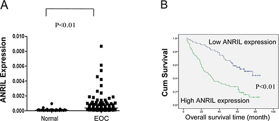 Relative ANRIL expression levels and their association with poor prognosis in EOC.