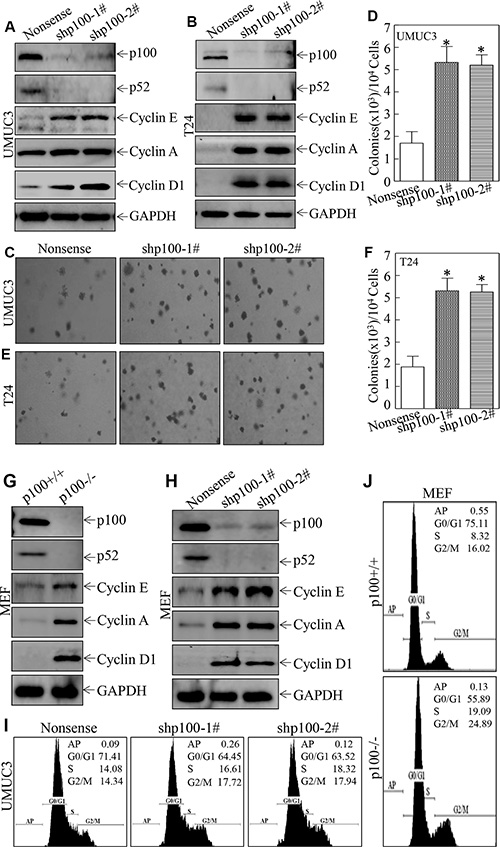 p100 exhibited an inhibitory effect on anchorage-independent growth and cell cycle progression accompanied with suppression of Cyclin in UMUC3 and T24 cells.