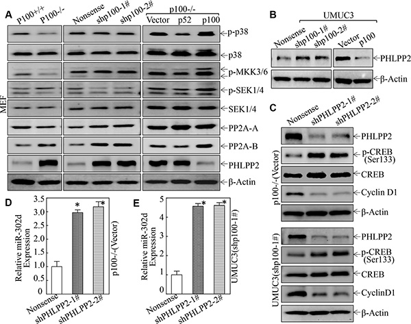 PHLPP2 was a p100 downstream Phosphatase being responsible for its mediating CREB phosphorylation at Ser133, and in turn regulated miR-302d/Cyclin D1 Axis.