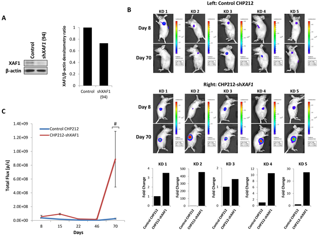 XAF1 knockdown promotes tumor progression in vivo.