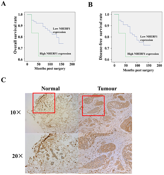 Expression of NHERF1 in normal and cancerous human breast tissues.